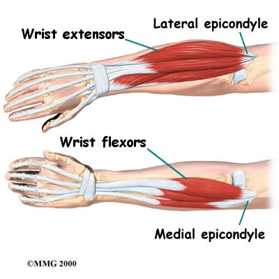 Epicondylitis Tennis Elbow Science Based Chiropractic