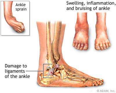 ankle sprain facts science based chiropractic